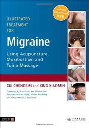 Illustrated Treatment for Migraine Using Acupuncture, Moxibustion and Tuina Massage - Chengbin, Cui